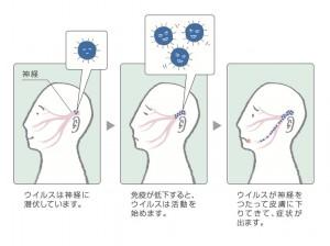 口唇ヘルペスは「単純ヘルペスウイルス」というウイルスに感染することで起こります